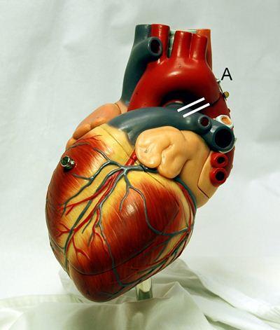 Close do coração: veias, artérias, músculos.
